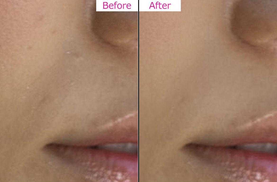 ブツブツ除去-Photoshop-Before-After
