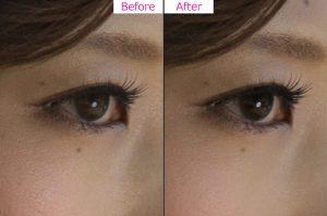 目もと修整-Photoshop-Before-After-1