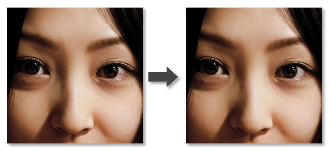 眼球補正-Before-After
