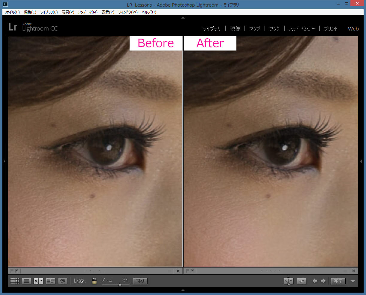 肌修整-Lightroom-Before-After-1