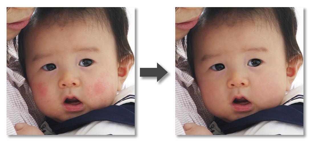 新生児の頬-Before-After